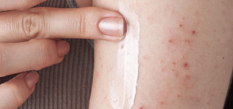 Looking for Some Psoriasis Information or Treatment Discounts?