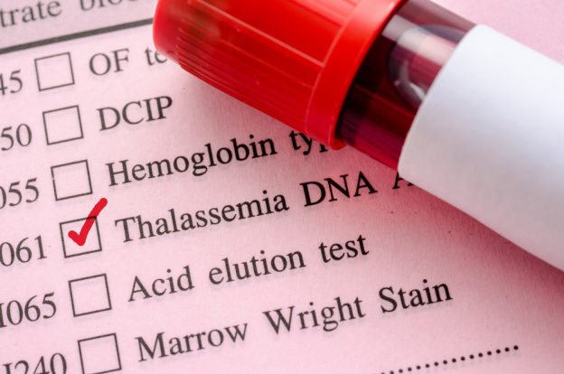 Treatment, Symptoms, and Signs of Sickle Cell Anemia
